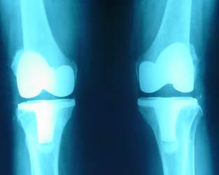 X射线帮助骨科医生透视每一寸骨骼
