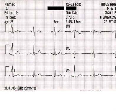 沃森可用于心血管病治疗