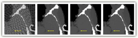 断层扫描示例