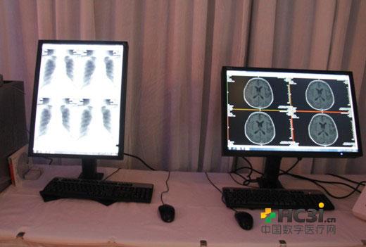NEC MD213MC显示器搭建的医疗解决方案