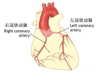 冠状动脉造影与支架放置示意图(1) - HC3i中国