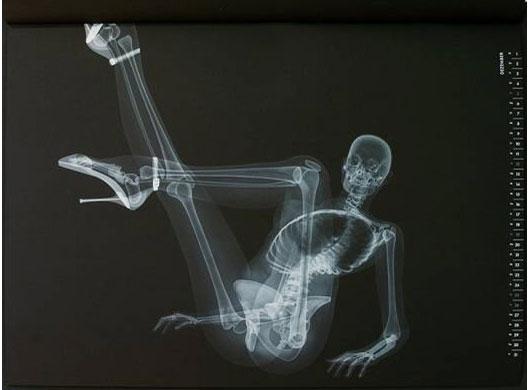 X光下只有骷髅和高跟鞋