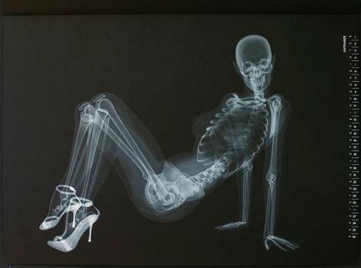 X光下的性感模特