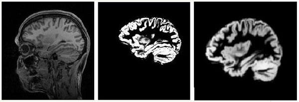 你如何测量大脑结构 组图 1
