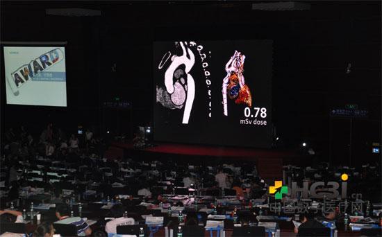 西门子医疗中国首届低剂量CT图像大赛78号参赛作品