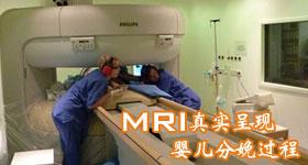 核磁共振仪首次呈现婴儿分娩真实过程
