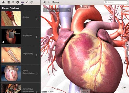 BodyMaps医学解剖应用程序